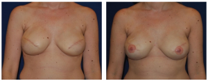 Breast Reduction NY Before and After 1