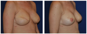 Breast Reduction NY Before and After 2