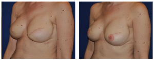 Breast Reduction NY Before and After 3