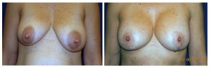 Patient_2_beforeandafterbreasts