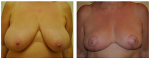 Breast Reduction NY: Before and After 1