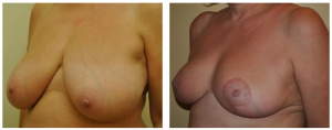 Breast Reduction NY: Before and After 2