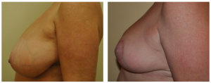 Breast Reduction NY: Before and After 3