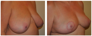 Breast Reduction NY: Before and After 4