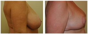 Breast Reduction NY: Before and After 5