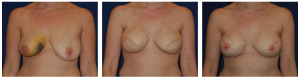 breast reconstruction photos 1