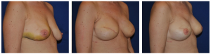 breast reconstruction photos 2