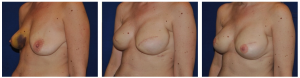 nyc breast reconstruction photos 3