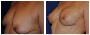 leo keegan breast reconstruction photos 2