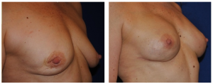 leo keegan breast reconstruction photos 3