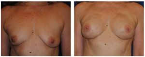 leo keegan breast reconstruction photos
