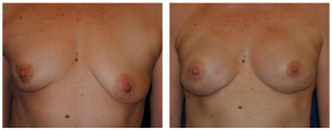 breast reconstruction photos 6