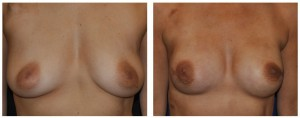 nipple sparing mastectomy nyc