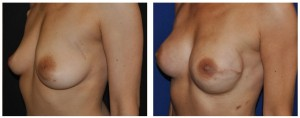 nipple sparing mastectomy dr. vickery