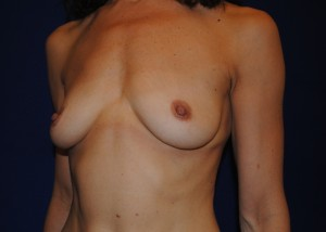 Before breast augmentation oblique view